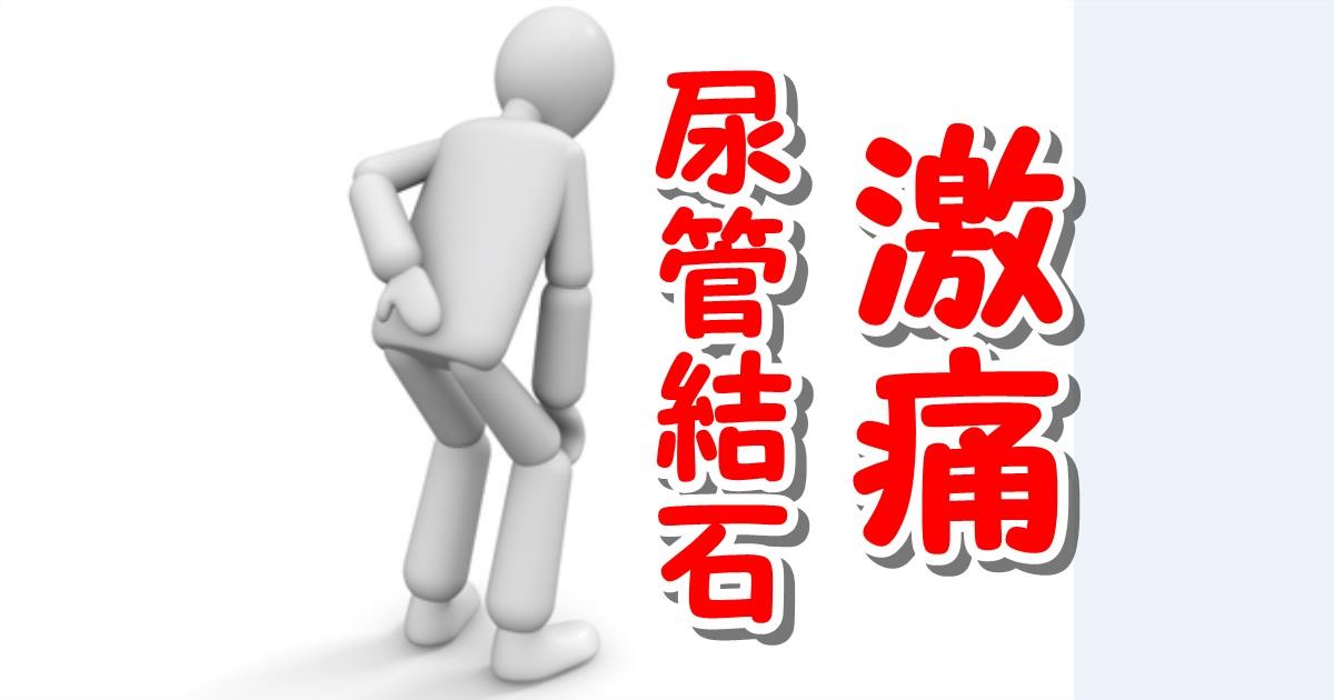 尿管結石激痛